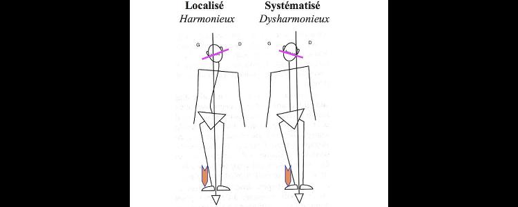 syndrome déficience posturale