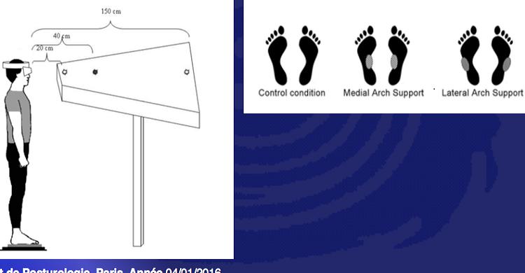 Posture, Stabilité et Oculomotricité